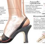 Ношение высоких каблуков вредит организму