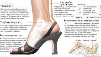 высокие каблуки, каблуки, вред каблуков
